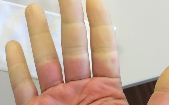 Raynaud's Disease: Treatment, Causes And Diagnosis