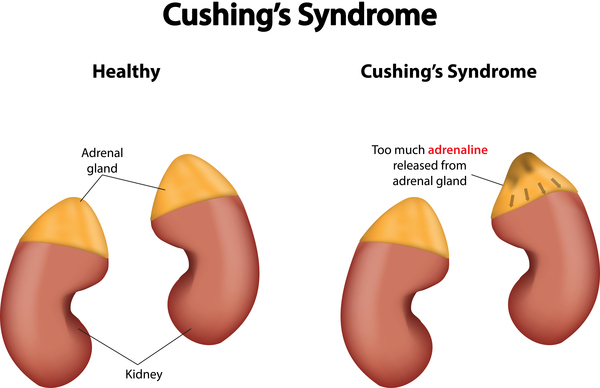 Cushing's Syndrome: Symptoms, Treatment And Diagnosis