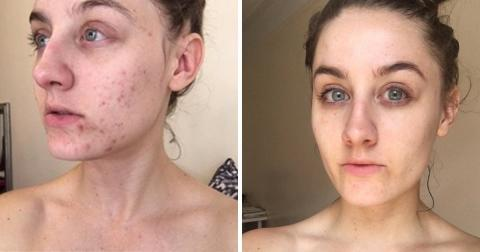 This Woman Got Rid Of This Beauty Product And The Results Are Amazing