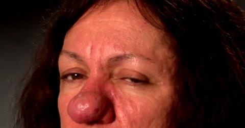 At The Age Of 15, This Woman's Nose Started To Grow Uncontrollably