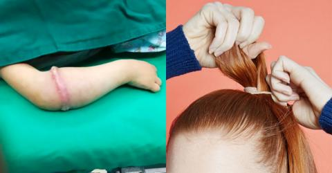 This Little Girl Proved Exactly Why Hair Bobbles Can Be So Dangerous...