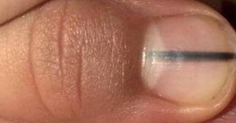 Woman Discovers The Black Mark Under Her Fingernail Is Actually A Serious Warning Sign