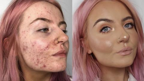 These Incredible Before And After Photos Show Just How Amazing This Foundation Is