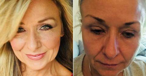 She Skipped Taking Her Makeup Off For 25 Years - Now She's Paying A Terrible Price