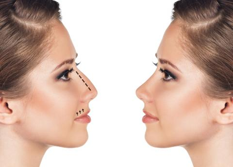 Everything You Need To Know About Rhinoplasty