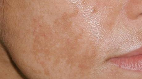 These Are 4 Habits That Lead To Brown Spots On Your Skin
