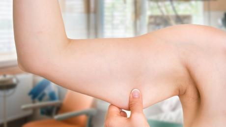 This Simple Home Remedy Will Tighten Up Sagging Skin On Your Arms, Tummy And Legs