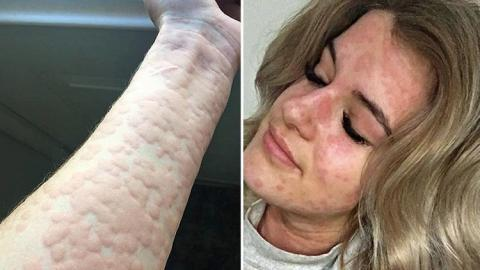 This Woman Has A Rare Allergy That Could Kill Her Every Time She Steps Outside