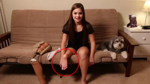 As A Child, She Had To Have Her Foot Reattached To Her Knee… This Is Her Today