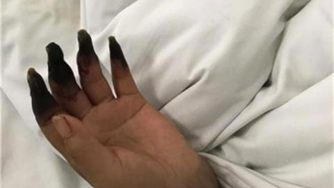 This Woman's Hand's Started To Turn Black After She Spent The Afternoon Cleaning Her House