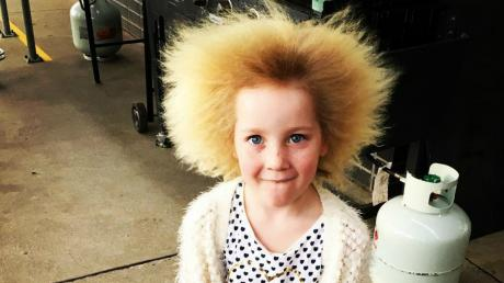This Little Girl Is One Of 100 People In The World Who Suffer From This Extremely Rare Syndrome
