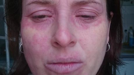 After Drinking One Beer, This Woman Says You Could Have 'Fried An Egg On Her Face'