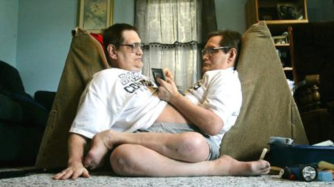 Meet Ronnie And Donnie Galyon, The World's Oldest Living Conjoined Twins