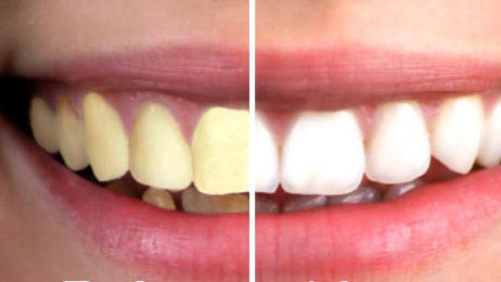This Simple, Natural Product Will Give You Pearly White Teeth