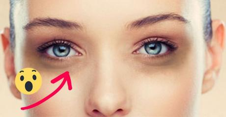 Get Rid Of Dark Circles In 30 Seconds With This Simple Tip