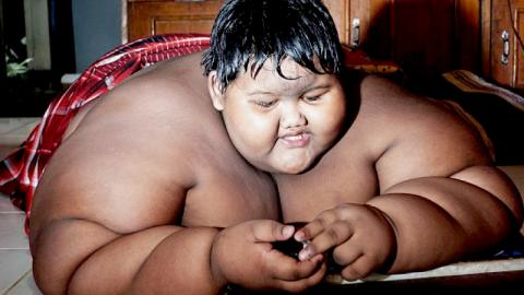 The Radical Transformation Of The Fattest Child In The World
