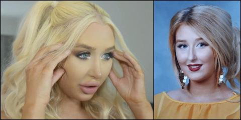 Meet The 22-Year-Old Woman Whose Plastic Surgery Addiction Had Almost Killed Her