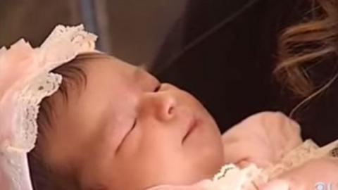 This Baby Girl Was Born With An Extremely Rare Feature That Left Doctors Stunned