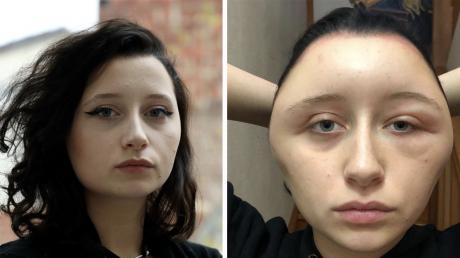 Her Head Started To Grow After Dyeing Her Hair - And It Almost Killed Her