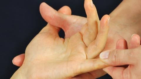 Here's What The Condition Of Your Hands Says About Your Health