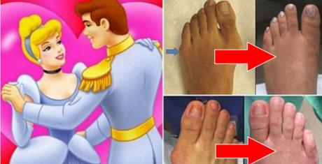Women In The US Are Getting 'Cinderella' Surgery For A Surprising Reason