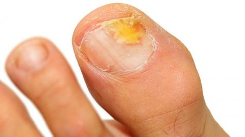 This Home Remedy Will Get Rid Of Foot Fungus For Good
