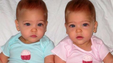 8 Years Later This Is What 'The World's Most Beautiful Twins' Look Like Now