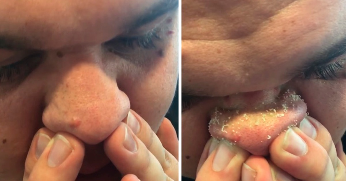 Can you Cysts zit pimple popping satisfy fetish