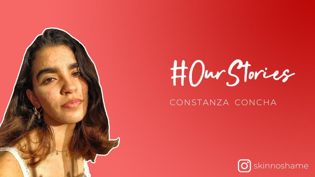In conversation with skin positivity influencer Constanza Concha
