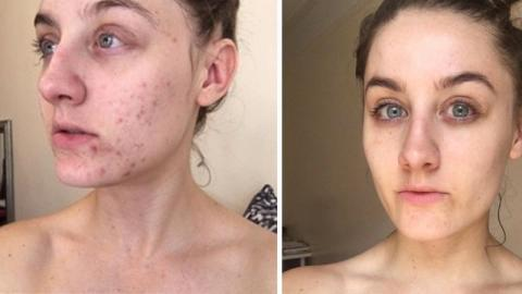 This Woman Stopped Washing Her Face For Six Months And Cured Her Acne
