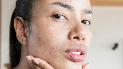 These products will prevent acne scarring from happening to you