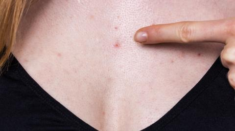 Chest acne: Why we get it and how to get rid of it