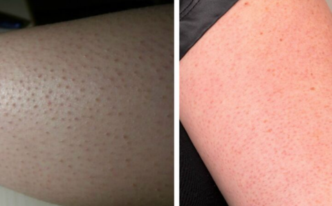 Keratosis pilaris: This is what causes those little red dots on your skin