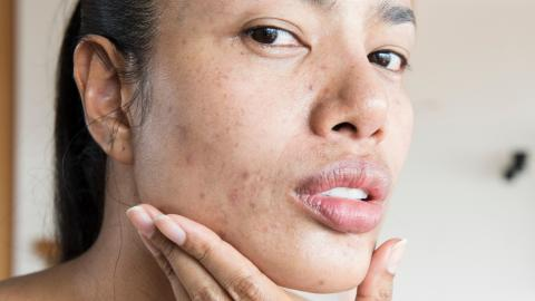 What is the skin positivity movement?