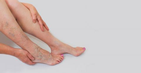 This Natural Remedy Will Finally Help You Get Rid Of Your Varicose Veins