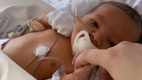 Baby's stomach balloons up hours after being born, leaving mum scared