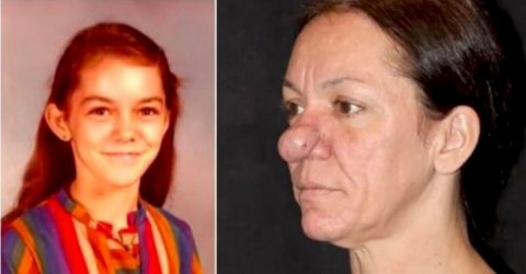 This Woman's Nose Has Been Growing Since She Was 15 Years Old, Find Out What She Looks Like Now!