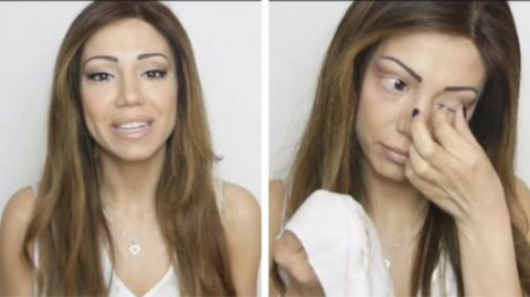 When she removed her makeup to reveal her condition, her fans were left speechless
