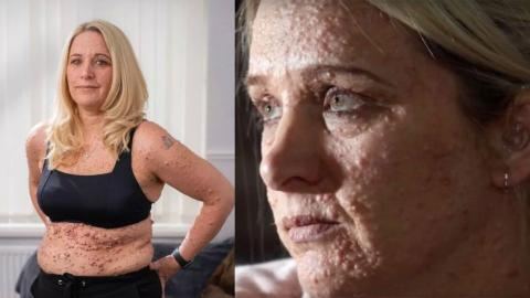 This body positive woman proudly bares her skin disease