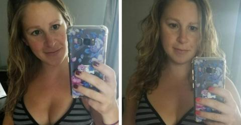 Body positivity: This woman's photos of her post-birth stomach went viral
