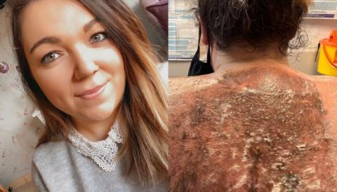 British mum hospitalised after severe sunburns leave her in excruciating pain